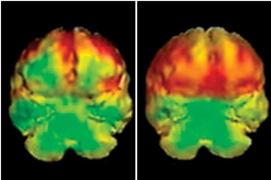 Neglecting Neuroscience Has Criminal >> Neuroscience Research The Criminal Brain Brain Research Adrian